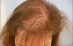 Андрогенная алопеция: лечение, причины, особенности андрогенетического облысения у женщин, мужчин