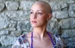 Выпадение волос после химиотерапии: причины, лечение, восстановление