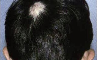 Рубцовая алопеция — описание, причины, лечение