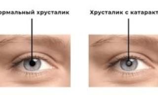 Методы хирургии катаракты – здоровье зрения и глаз