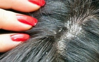 Почему выпадают волосы и появляется перхоть?