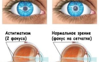 Заболевание астигматизм. Чем лечить?