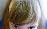 Очаговая, гнездная алопеция у детей — причины и лечение облысения