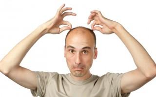 Причина выпадения волос у мужчин известна, а значит – победима!
