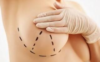 Могу ли я избежать подтяжки груди, если я использую имплант большего размера?