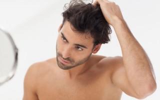 Что делать при очаговом выпадение волос у мужчин?