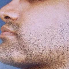 Алопеция на бороде у мужчин: причины возникновения и методы лечения