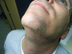 Алопеция на бороде у мужчин причины возникновения