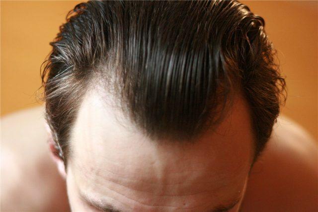 Облысение у мужчин: причины алопеции и борьба с выпадением волос