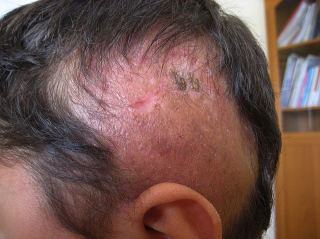 Особенности рубцовой алопеции и её лечение
