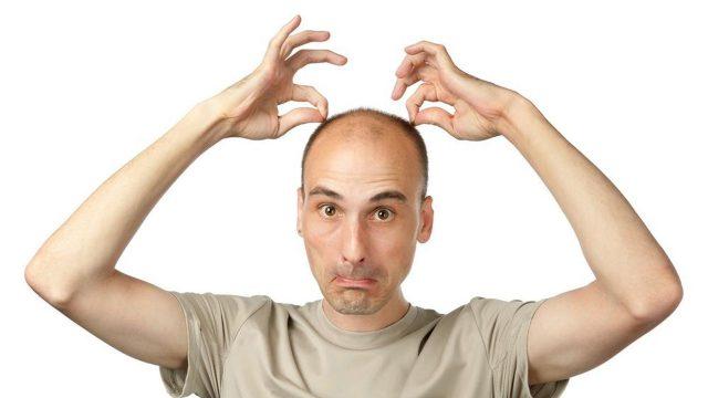 Причина выпадения волос у мужчин известна, а значит - победима!