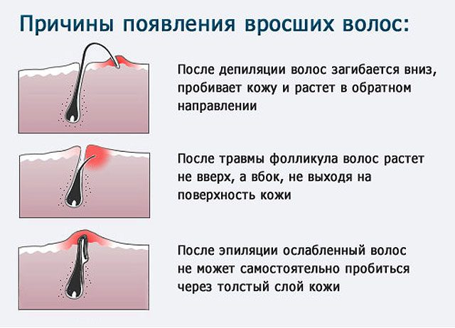 Методы борьбы с вросшими волосками после эпилятора