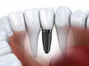 Стоимость зубного импланта: чего ожидать