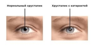 Методы хирургии катаракты - здоровье зрения и глаз