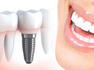 Что вам нужно знать об имплантации зубов - разбираем тему с экспертом